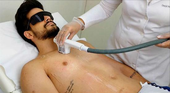 Homem No Espelho - Tipos de depilação masculina- Laser - Luz pulsada