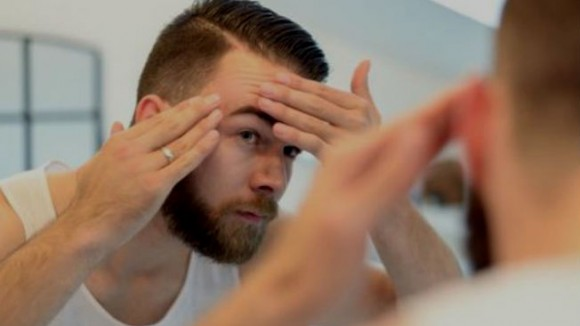 Homem No Espelho - Acne