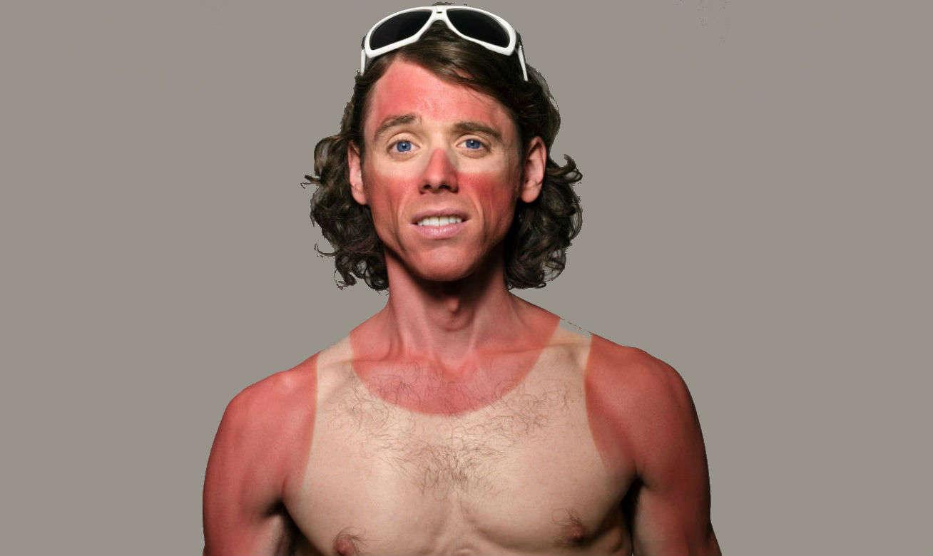 Homem No Espelho - Só um dia sem passar filtro solar pode detonar sua pele para sempre