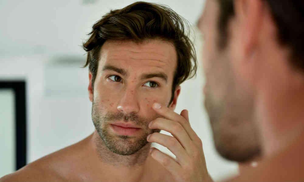 Homem No Espelho - Como tratar acne