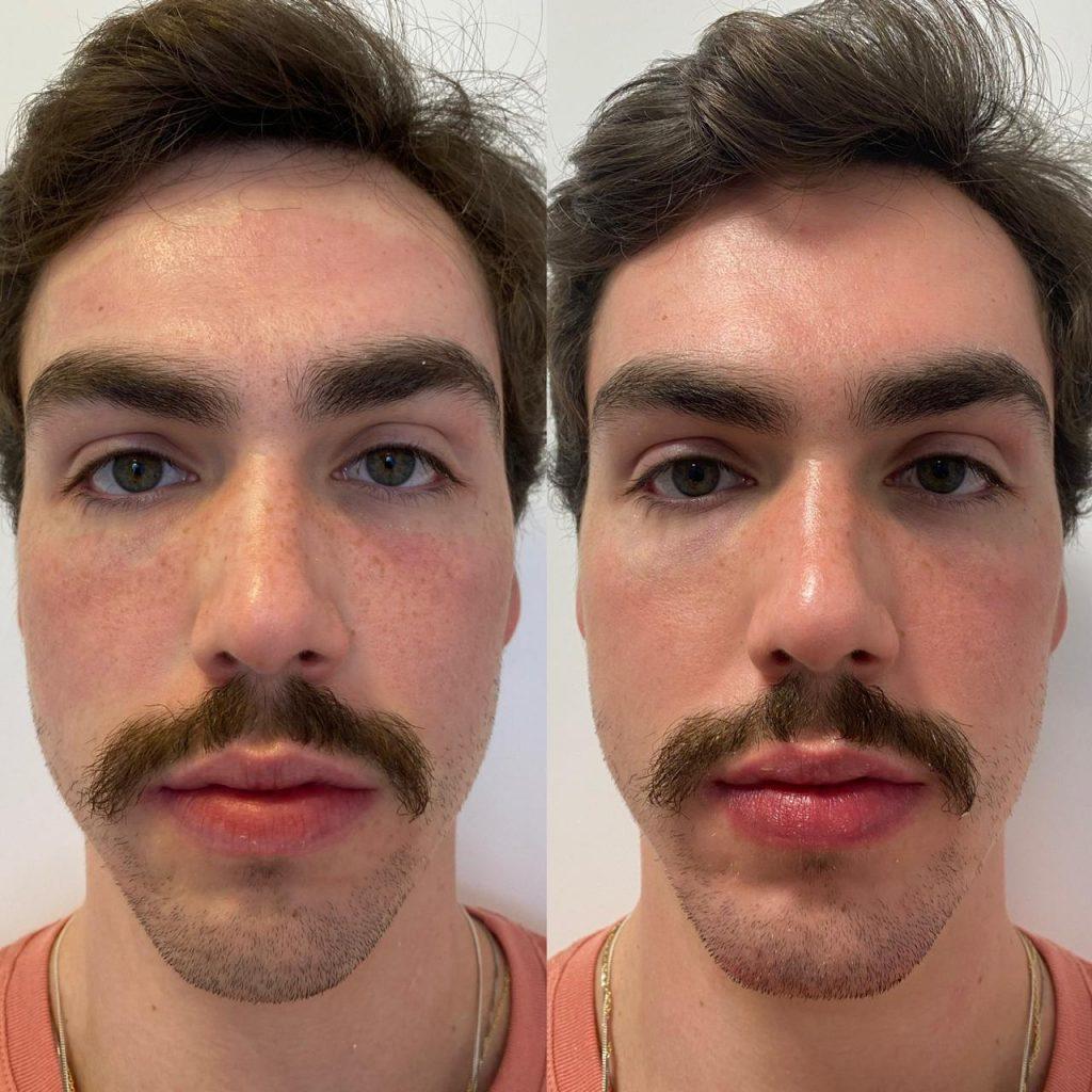 Homem No Espelho - Harmonização facial masculina - Lucas Lobo