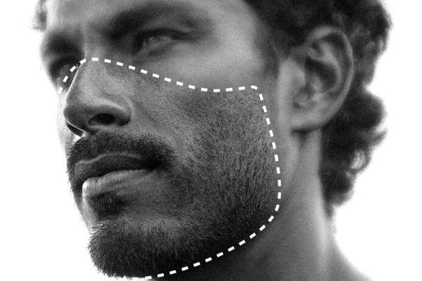 Homem No Espelho - Acne piora no verão - acne solar